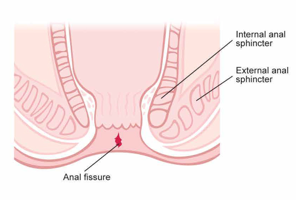 Anal fissure patient handout